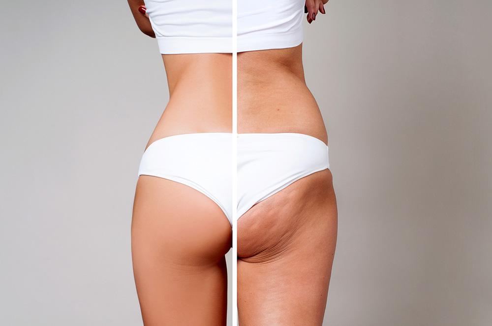 rueckenansicht weiblicher koerper - kosmetik-studio - stuttgart - carola kiesel - beauty-balance