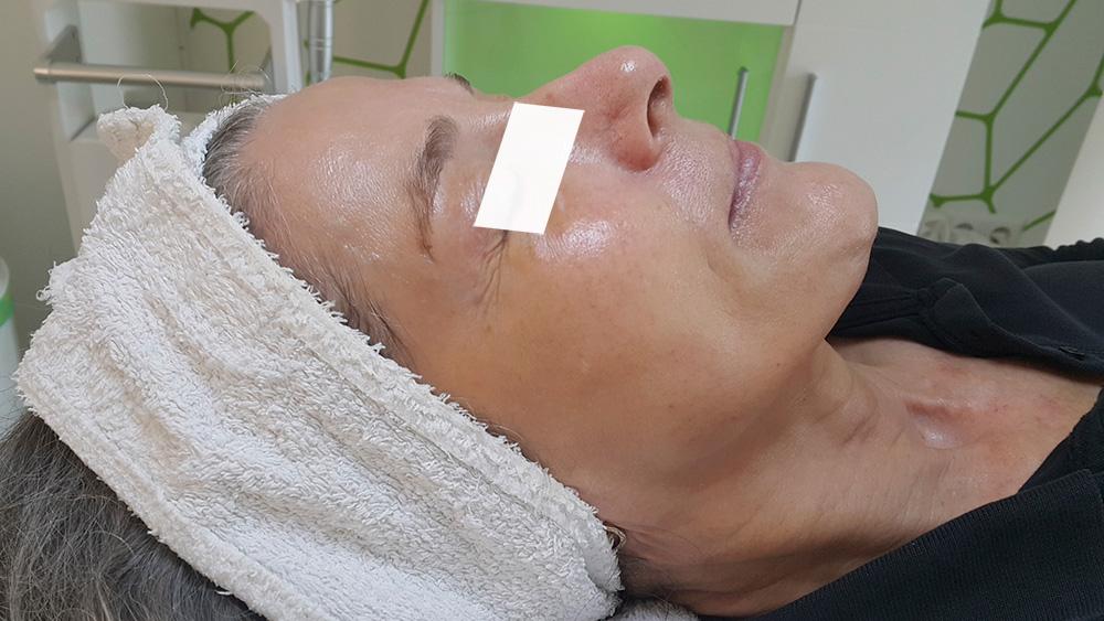 Gesicht Kundin nach Jet Peel-Behandlung
