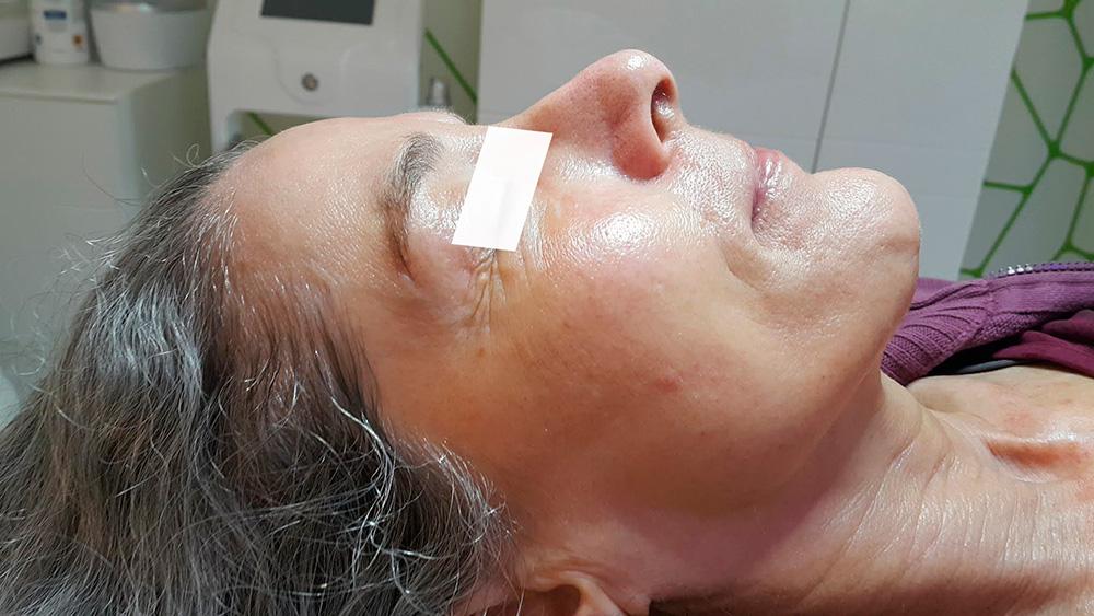 Gesicht Kundin vor Jet Peel-Behandlung