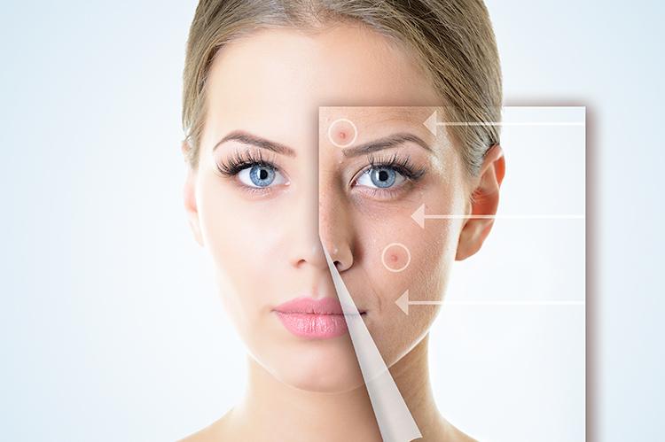 6 Tipps für langanhaltend glatte Haut